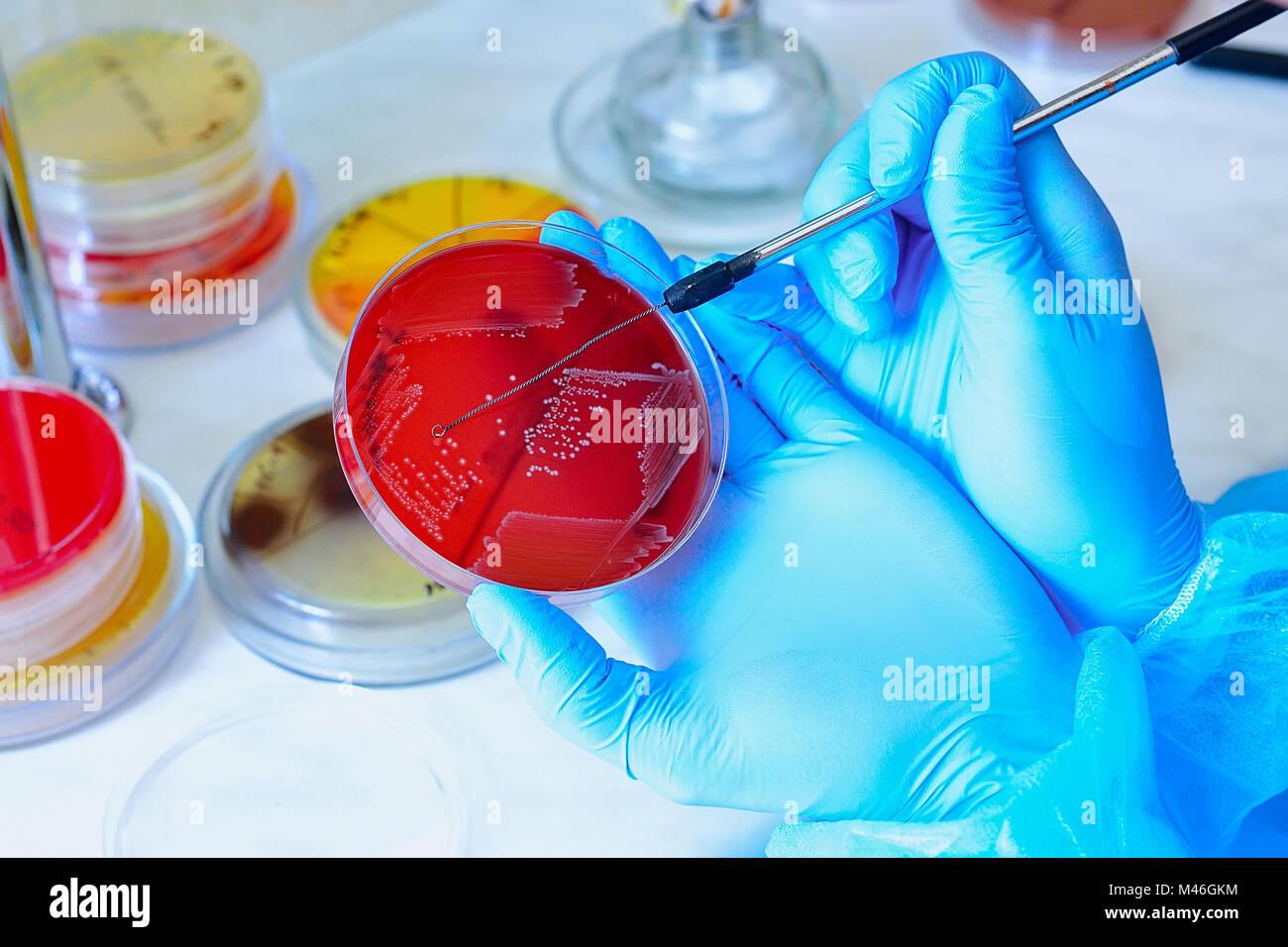 Petrischale. Mikrobiologische Labor. Schimmel und Pilzbefall Kulturen. Bakterielle Forschung Stockfoto