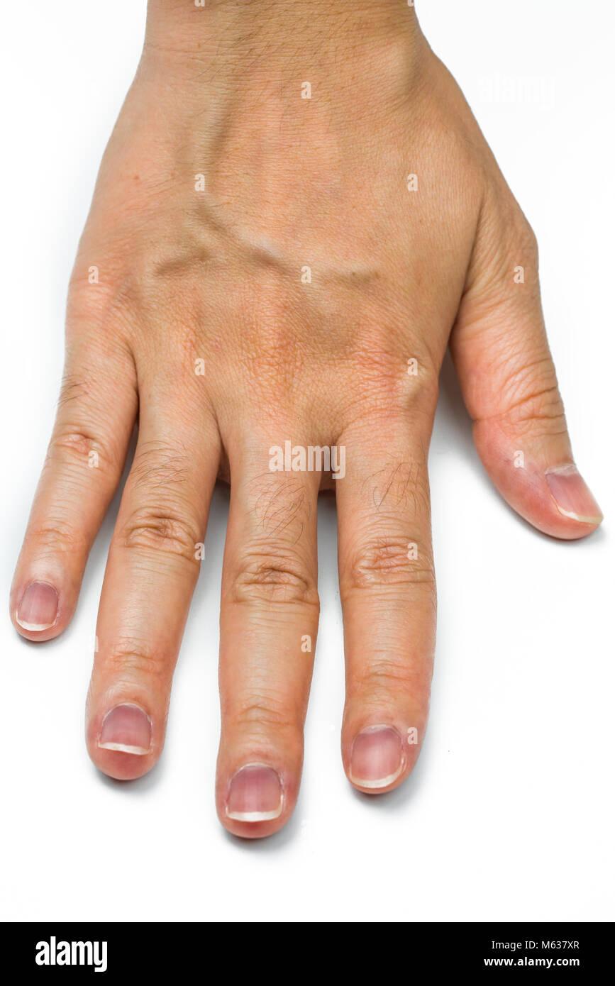 Hand Adern