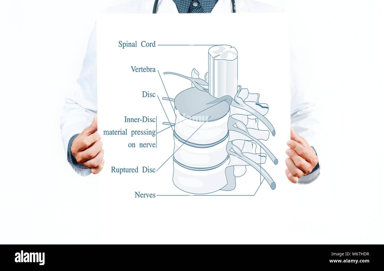 Medizin und Anatomie. Arzt und anatomische Wirbelsäule ...