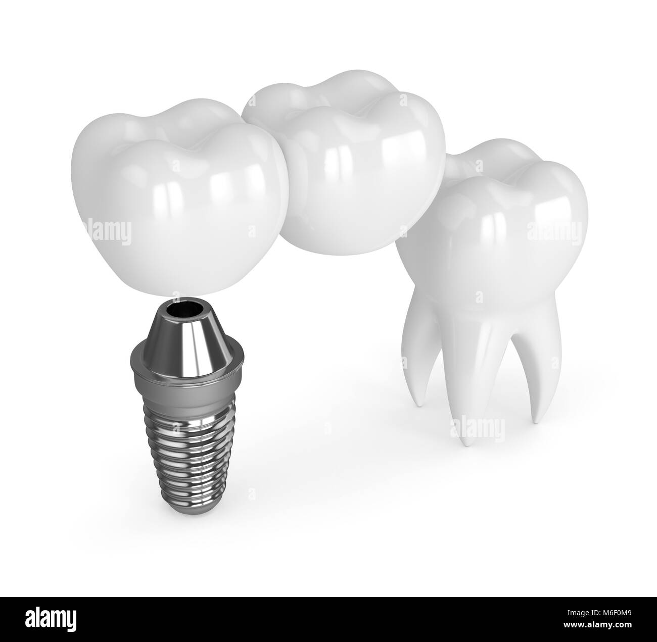 Molar Tooth Cross Section Stockfotos & Molar Tooth Cross Section ...