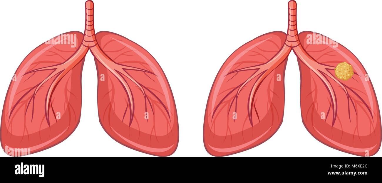 Lungs Diagram Stockfotos & Lungs Diagram Bilder - Seite 2 - Alamy