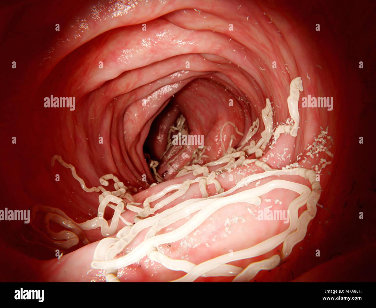 Abbildung Eine Infektion Der Ascaris Lumbricoides Parasitischen
