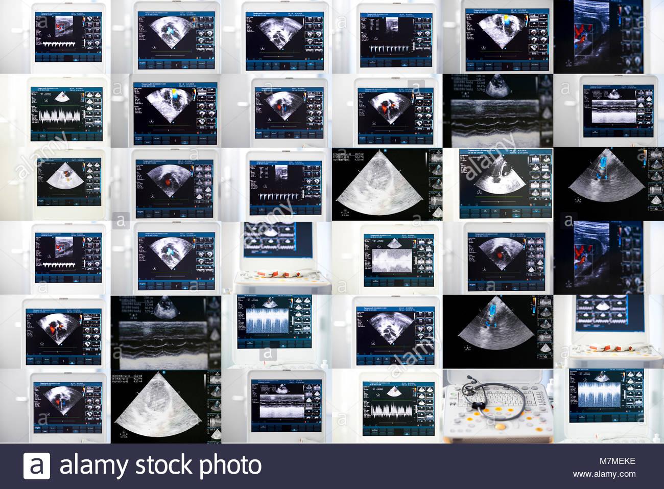 eine collage aus bildern von der ultraschall bildschirm mit dem herzen zu studieren stockfoto. Black Bedroom Furniture Sets. Home Design Ideas