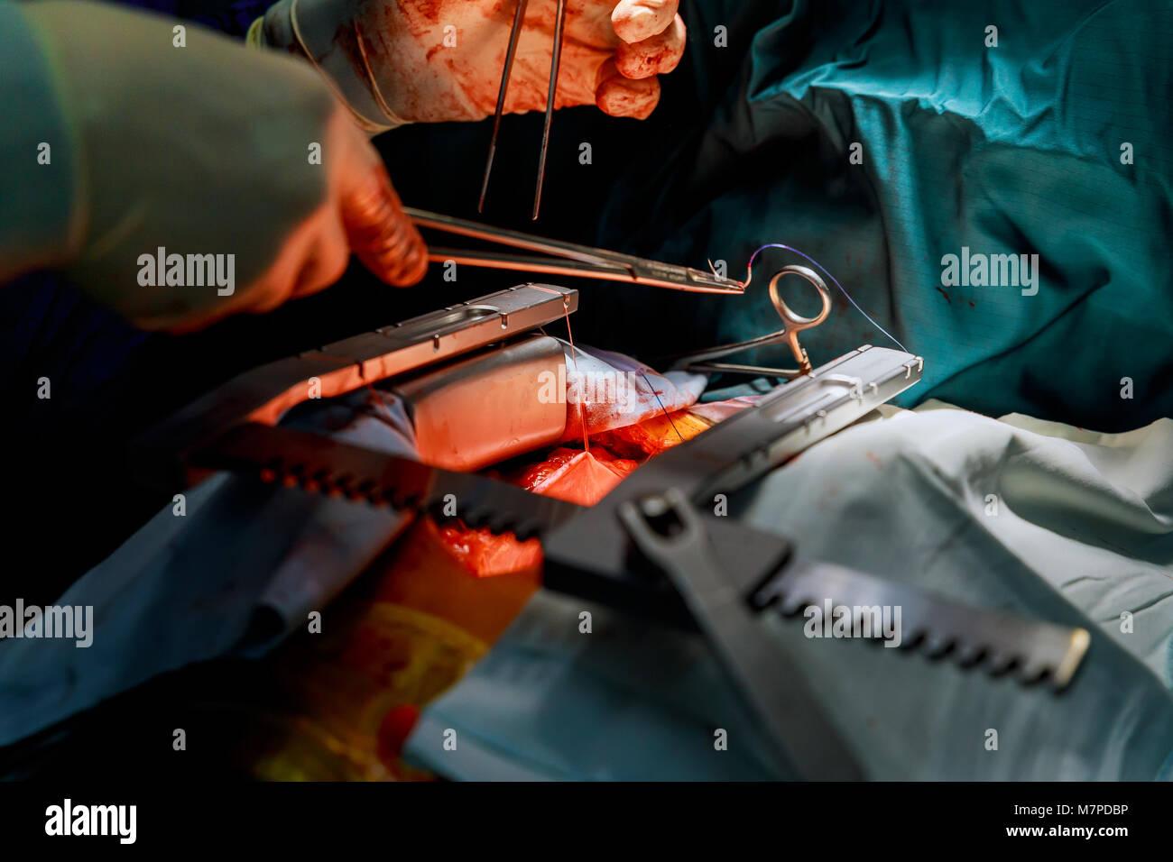 Tricuspid Valve Stockfotos & Tricuspid Valve Bilder - Alamy