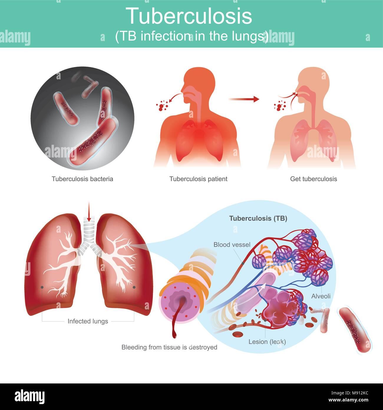 Patienten mit Infektionen der Atemwege. Durch Tuberkulose Bakterien ...