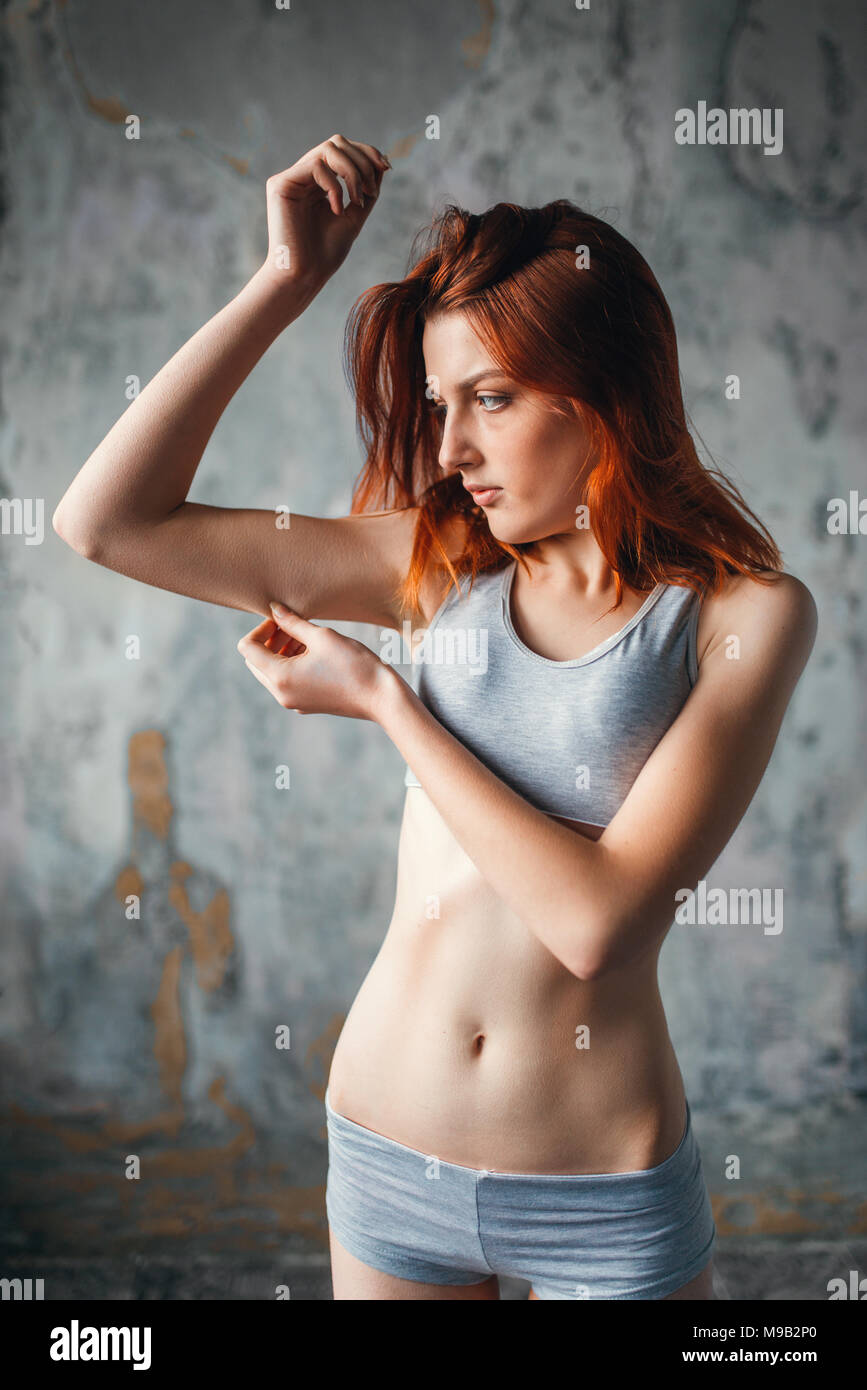 Magersüchtig Anorexie bei