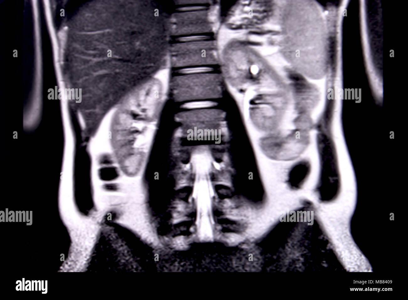 Fahrt durch die menschlichen Bauch und Brust durch 18 MRT-Schnitte ...