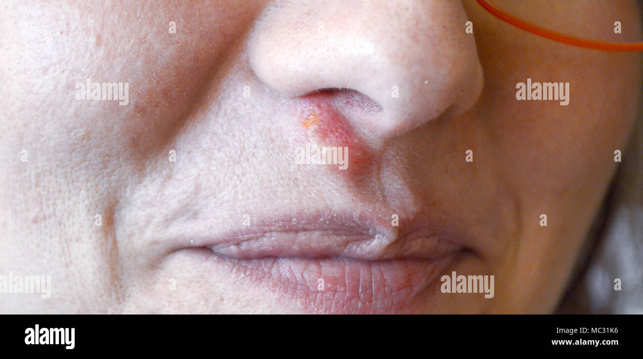 Herpes hund nase