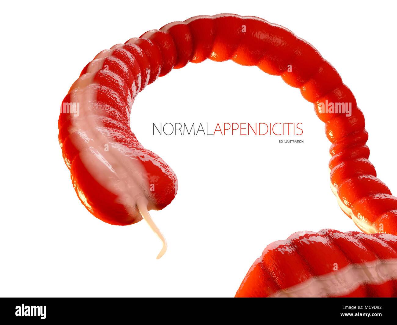Blinddarmentzündung Konzept, menschlichen Darm Anatomie als 3D ...