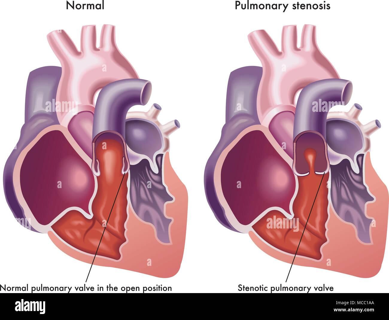 Eine Abbildung des menschlichen Herzens mit normalen Pulmonalklappe ...