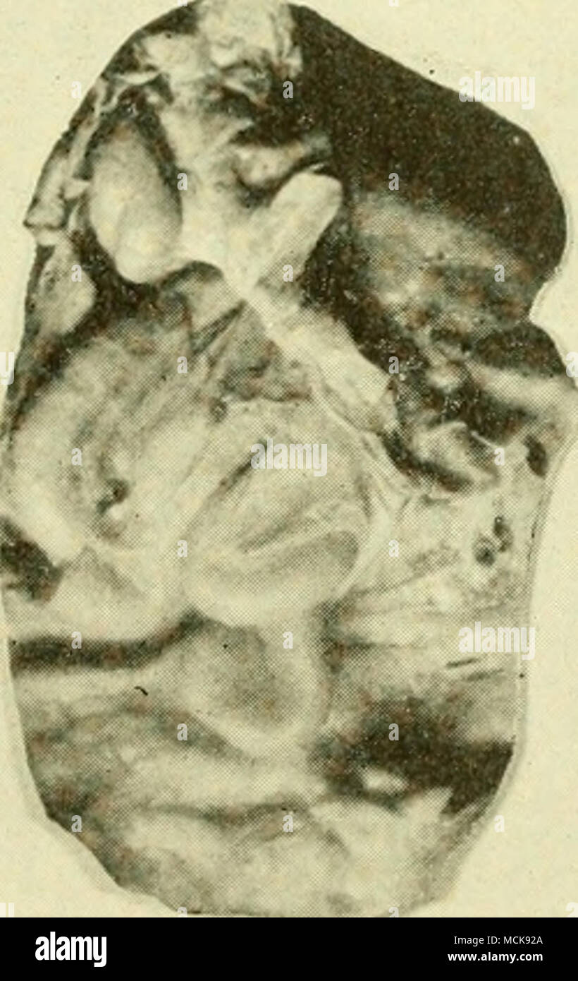 Normal Uterus Stockfotos & Normal Uterus Bilder - Alamy