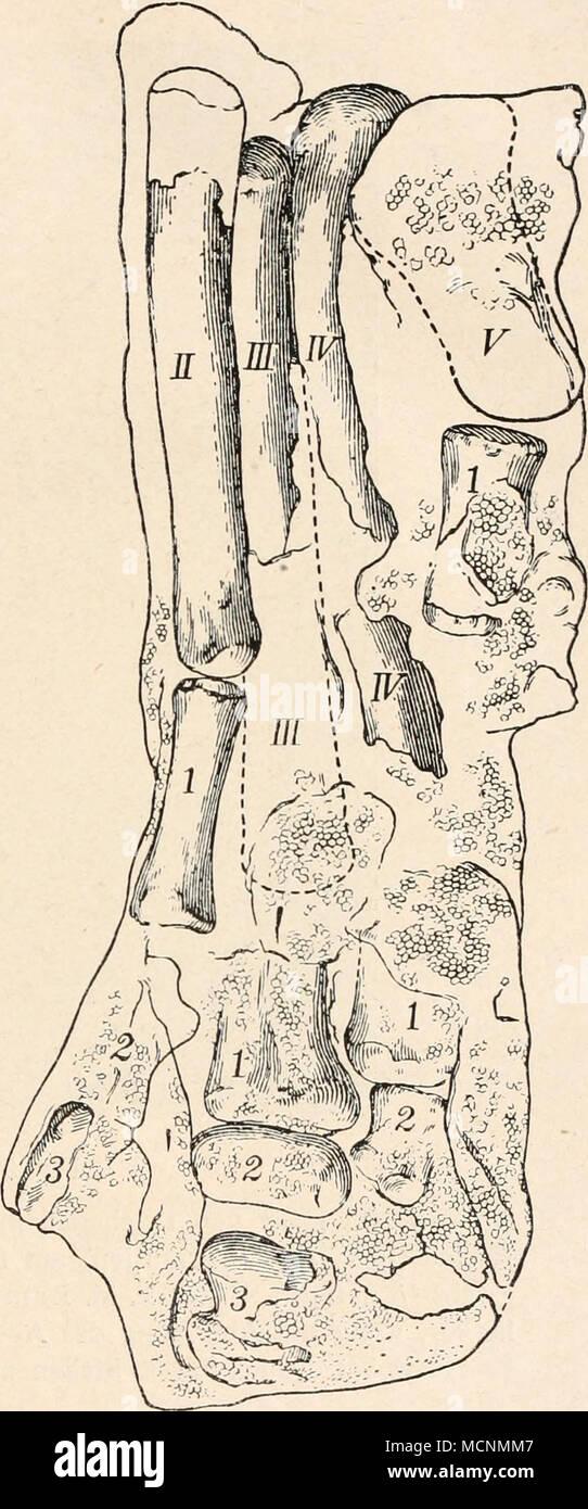 Fein Armvene Anatomie Iv Galerie - Anatomie Von Menschlichen ...