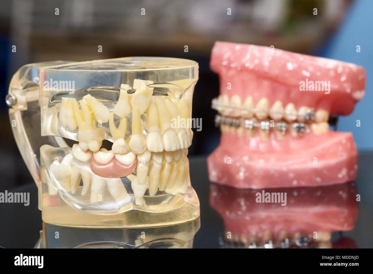 Nett Gebrochene Zähne Im Kiefer Verdrahtet Zeitgenössisch ...