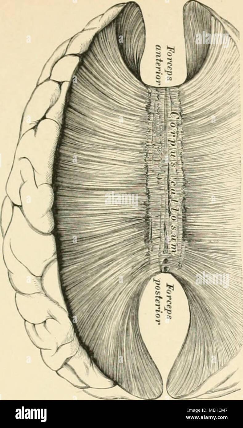 Ausgezeichnet Hirnstamm Mri Anatomie Bilder - Menschliche Anatomie ...