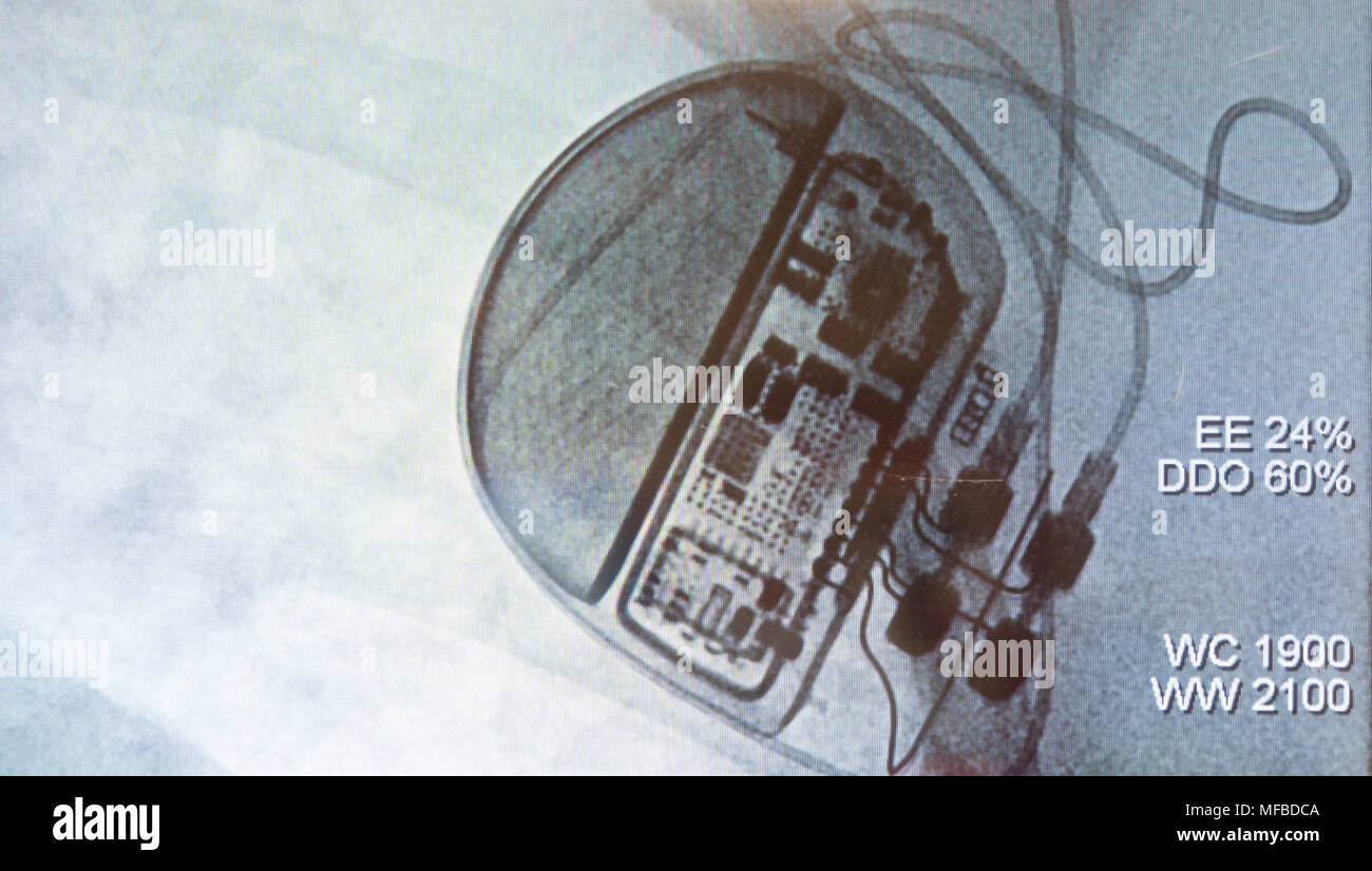 Ribs Showing Stockfotos & Ribs Showing Bilder - Alamy