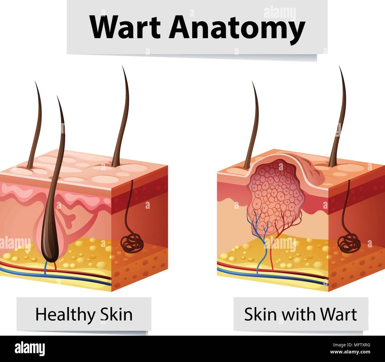 Warze menschliche Haut Anatomie Darstellung Vektor Abbildung - Bild ...