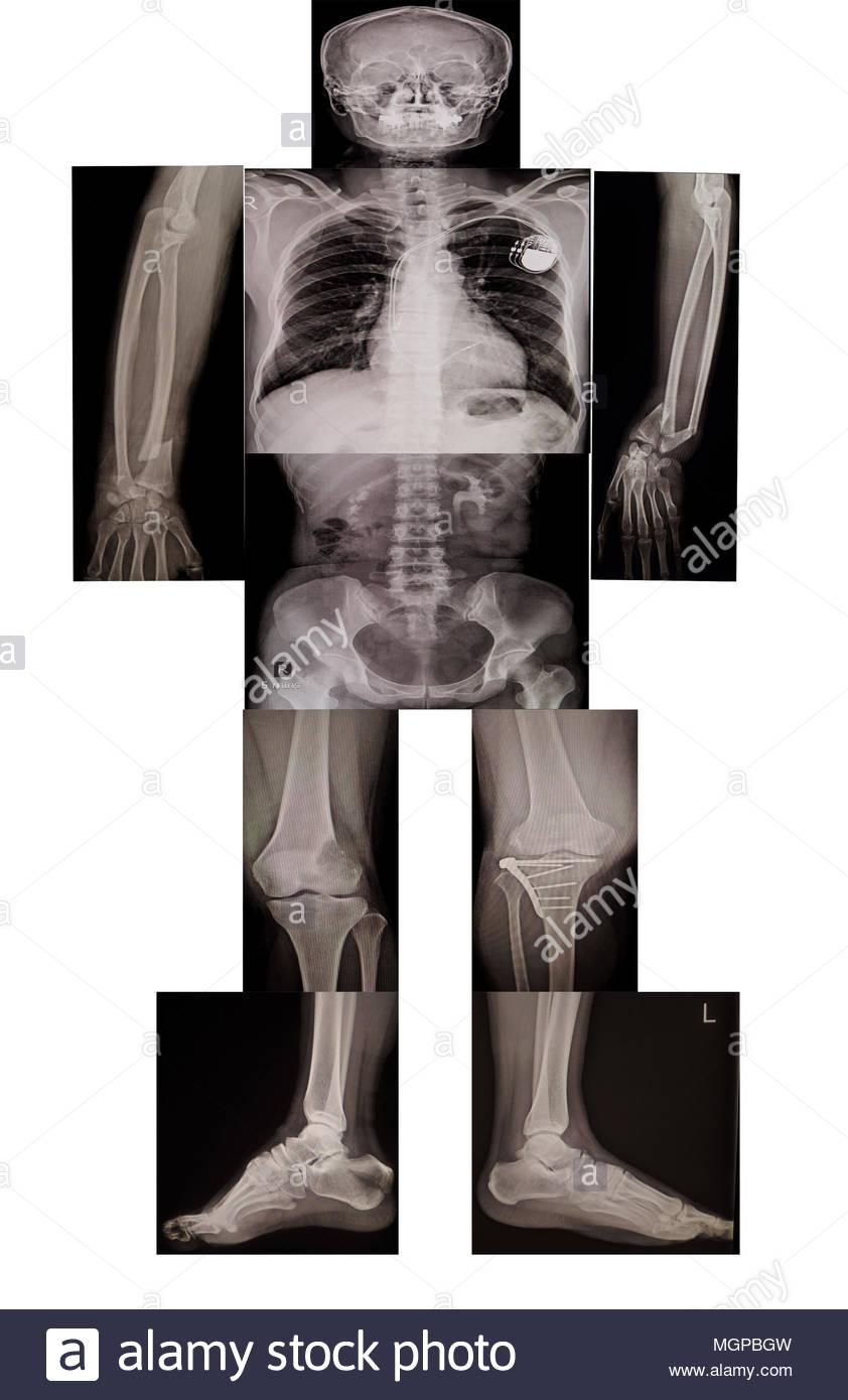 Sammlung Knochen und Skelett Körper Teil ein Mensch mit x-ray auf ...