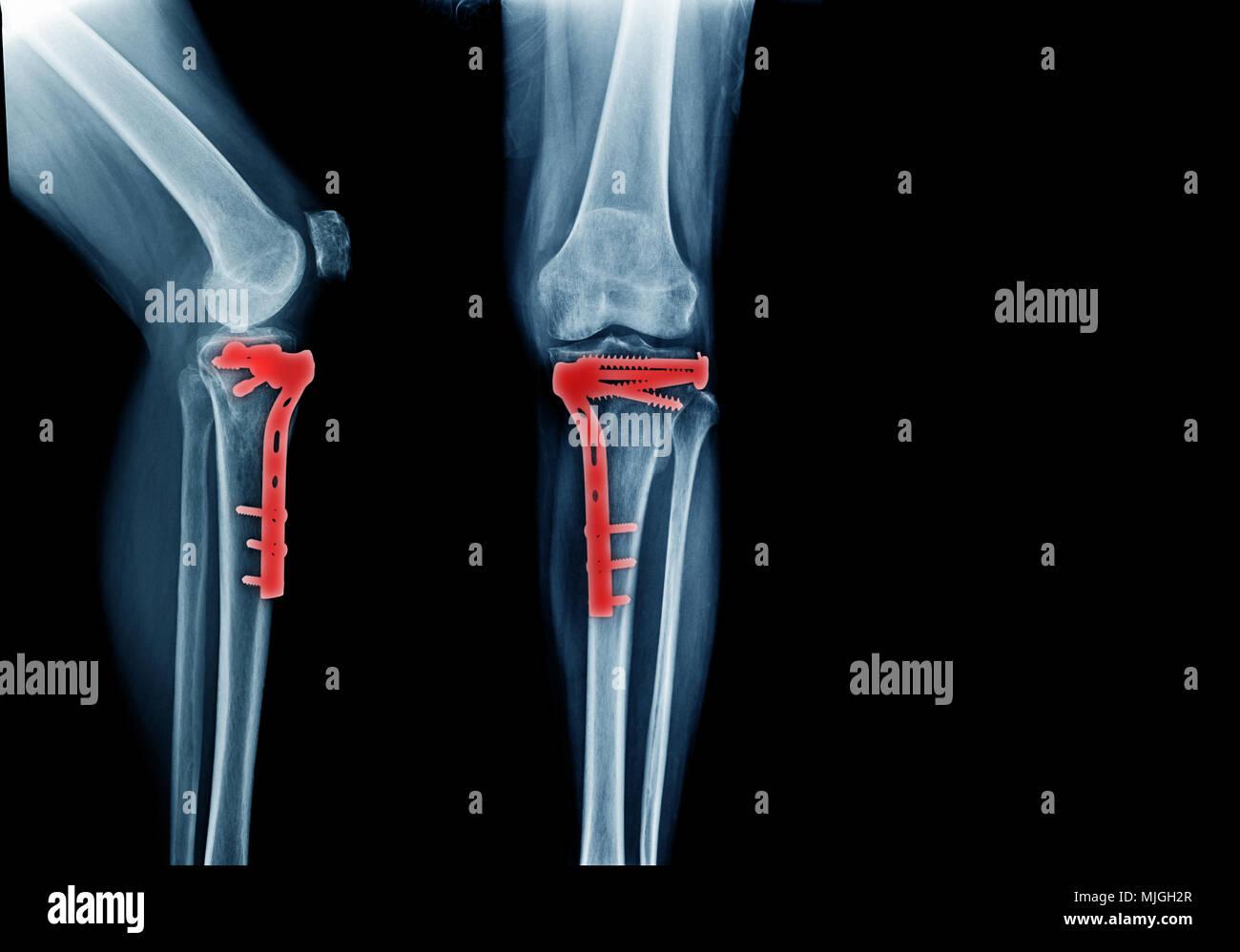 Fraktur tibia Knochen und nach der Operation Fixierung vordere und ...
