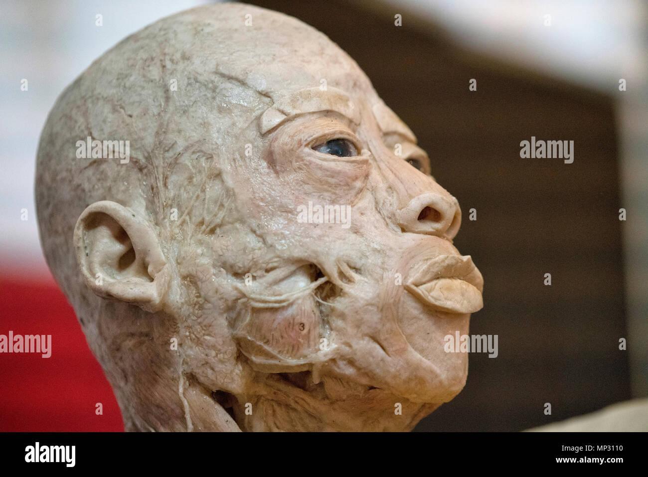 Anatomie eines echten menschlichen Kopf Stockfoto, Bild: 185692780 ...