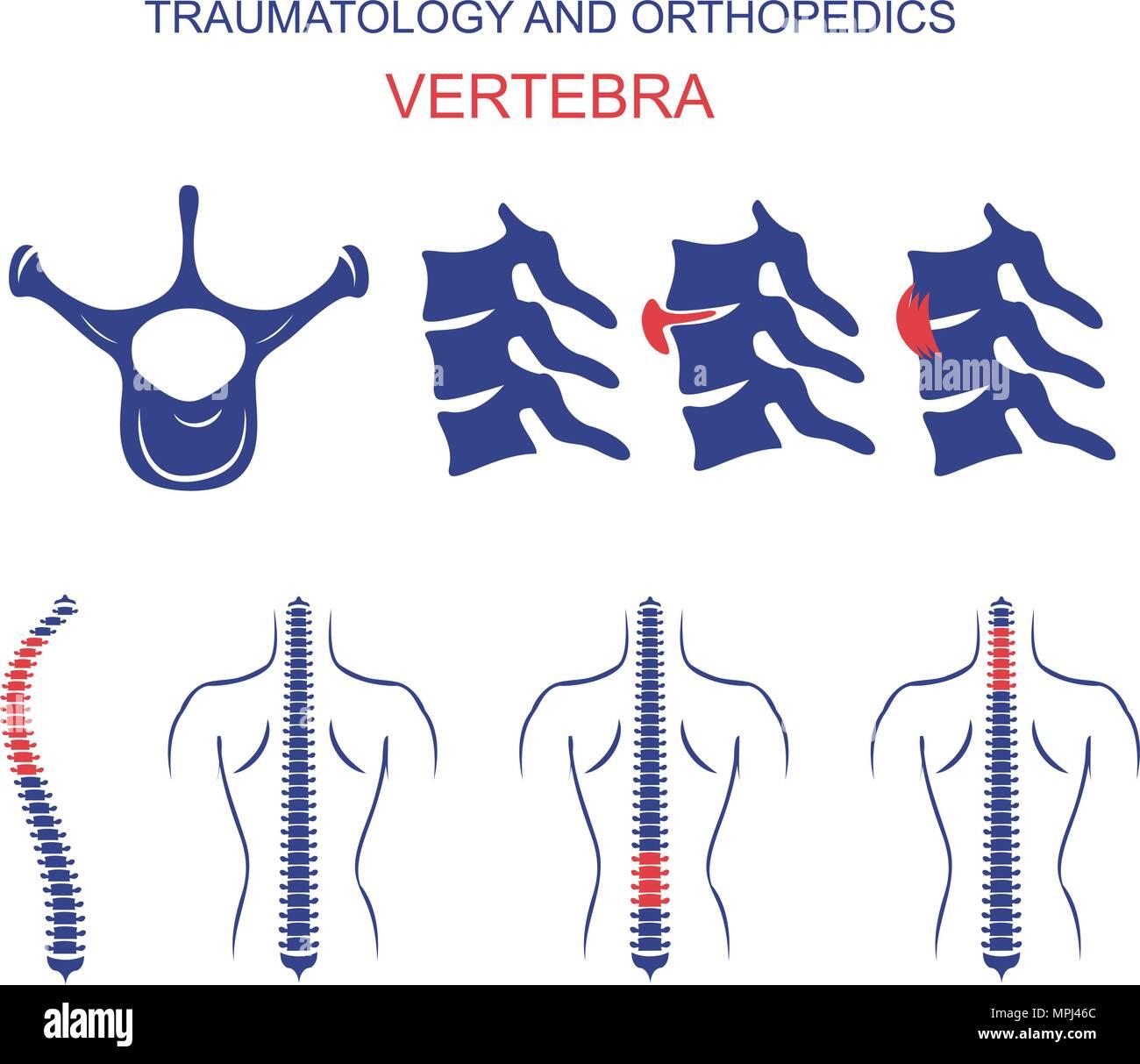 Abbildung der Wirbelsäule, Wirbel, Wirbelsäule Bandscheibenvorfall ...