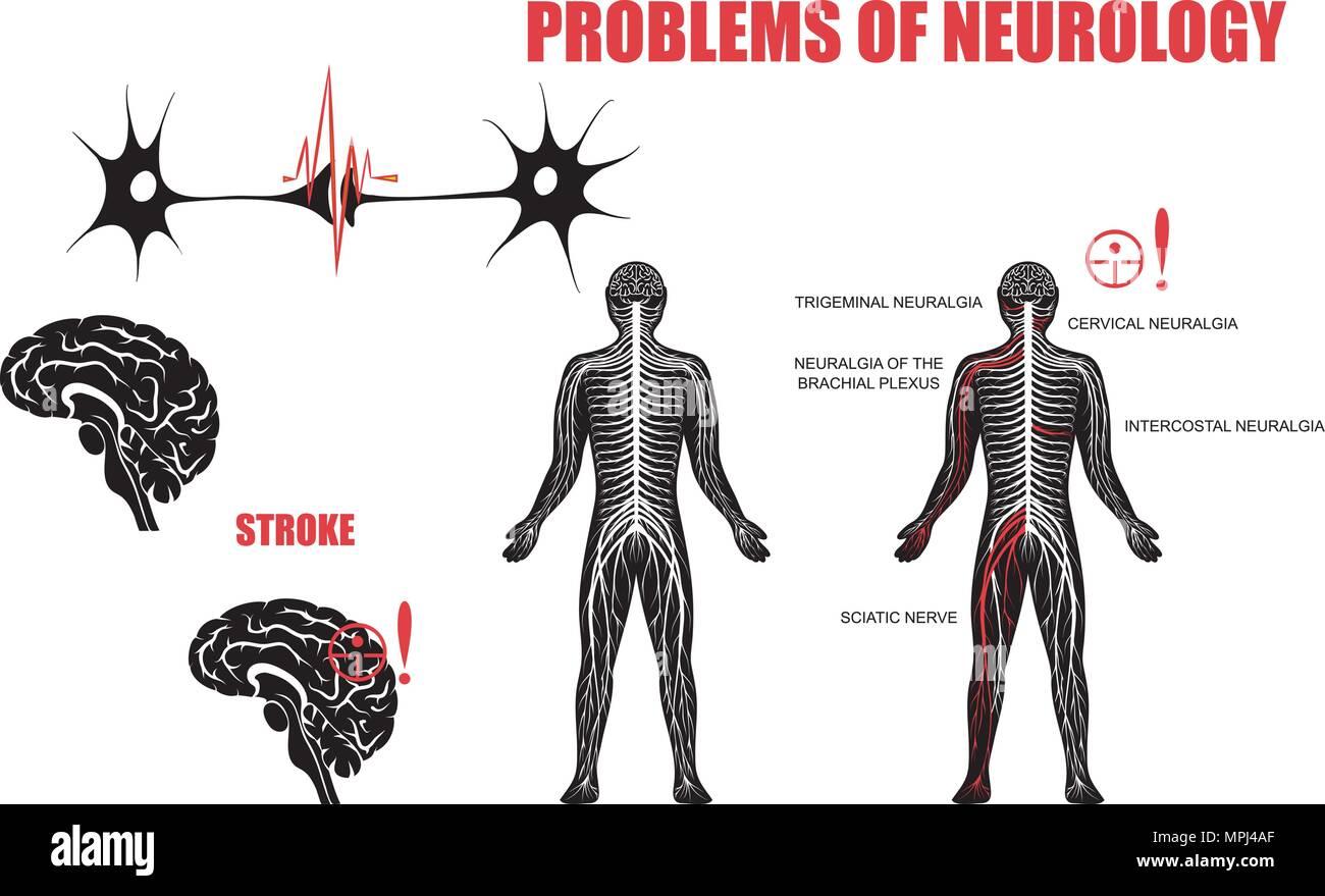 Abbildung des Nervensystems und neurologischen Erkrankungen. Gehirn ...