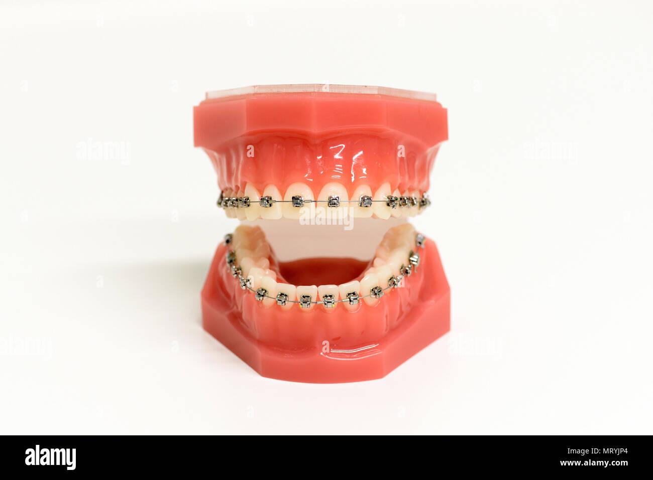 Kieferorthopädische Modell der Zähne mit Metallverstrebungen zu glätten die Zähne ausrichten und oder der Biss, offene frontale Ansicht korrigieren Stockbild