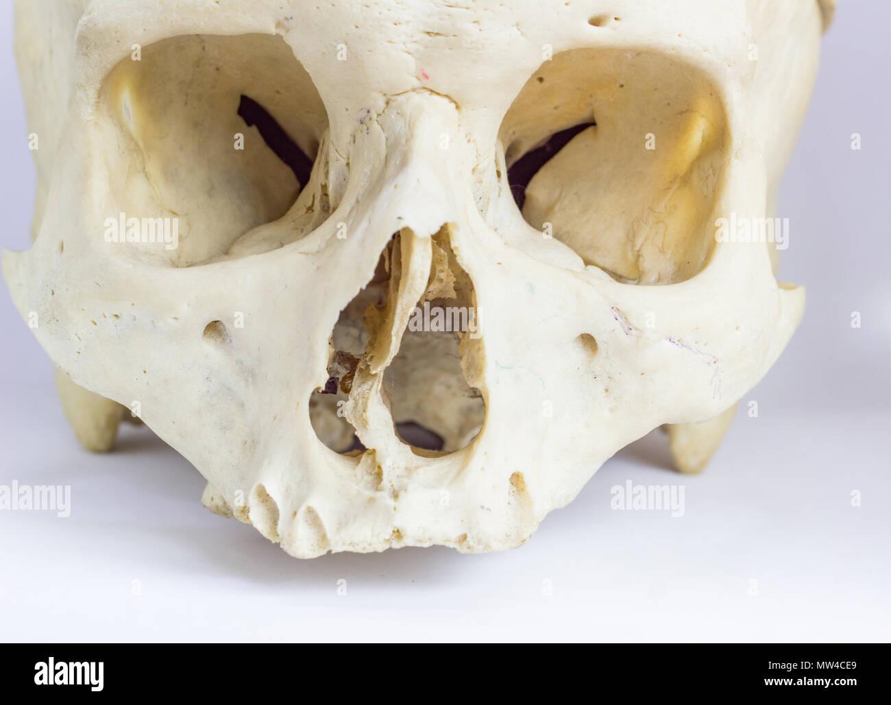 Nasal Septum Stockfotos & Nasal Septum Bilder - Alamy