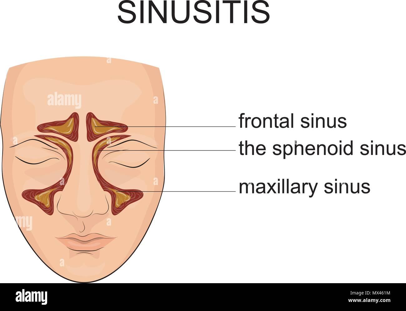 Sinuses Stockfotos & Sinuses Bilder - Alamy
