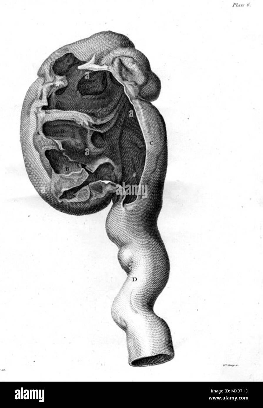 vergrößerte niere
