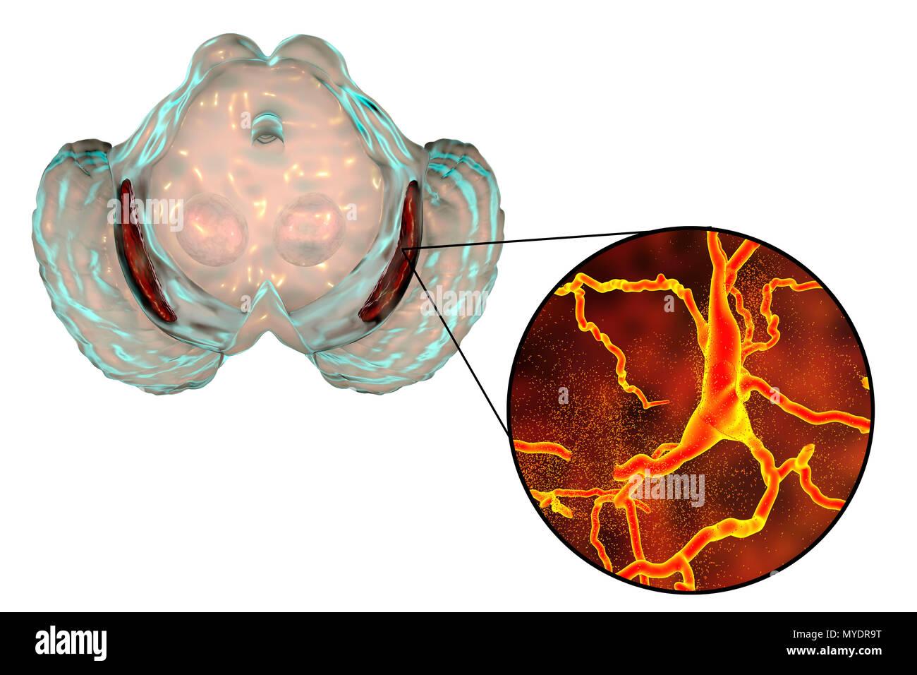 Substantia nigra. Computer zeigt eine Degeneration der Substantia ...