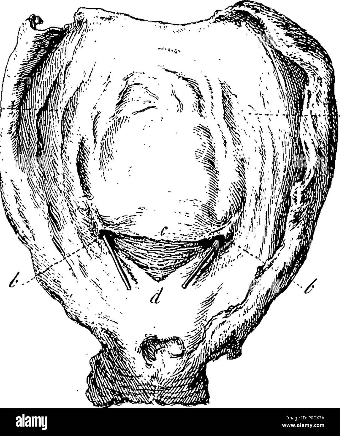 Fein Anatomie Der Blase Und Nieren Galerie - Anatomie Von ...