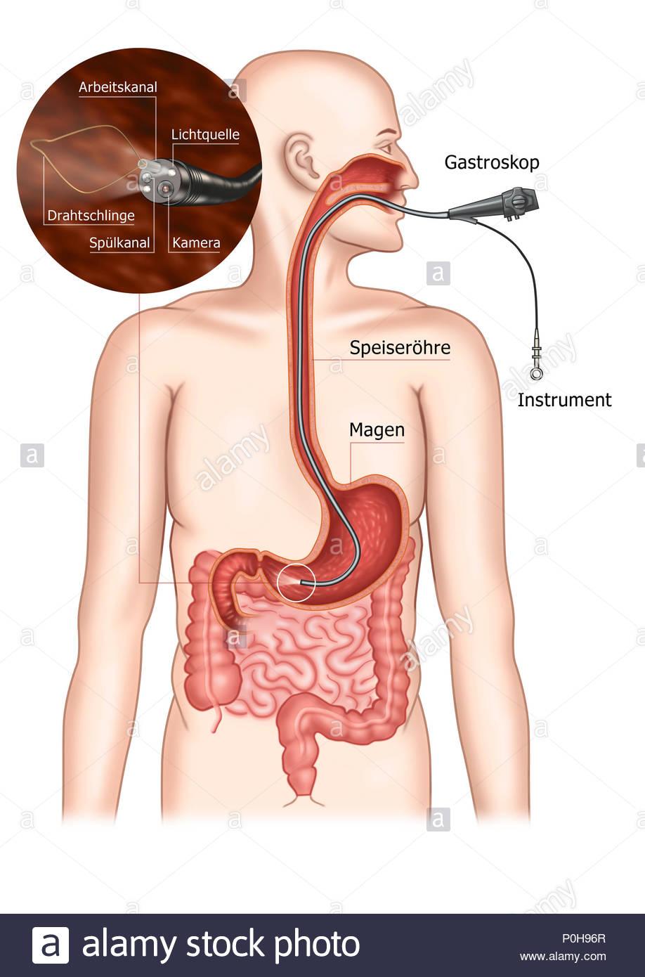 Gastroskopie - magenspiegelung der Magen der Magen Stockfoto, Bild ...