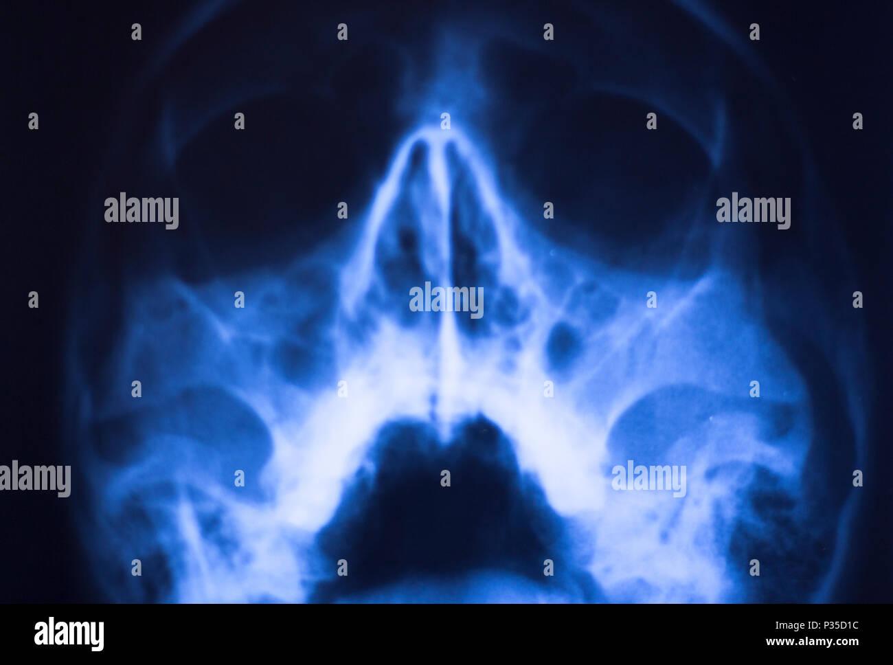 Medizinische Klinik X Ray Gesicht Schädel Zähne Mund Nase Und