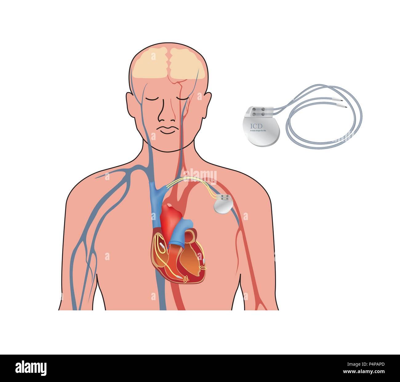 Herzschrittmacher. Menschliche Herz Anatomie Querschnitt mit ...