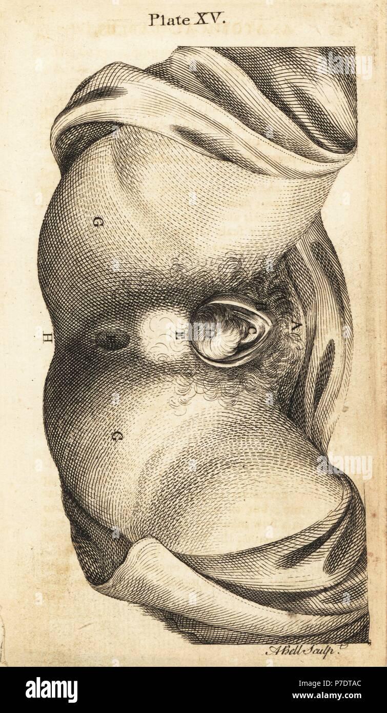 Schön Becken Und Perineum Anatomie Galerie - Anatomie Ideen ...