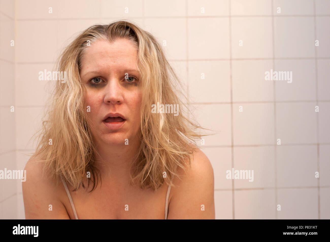 Eine Frau mit schrecklichen unordentlichen Haar, dunkle schwarze Kreise unter Augen und raue Gesicht fühlt sich krank, Kater oder krank Stockbild
