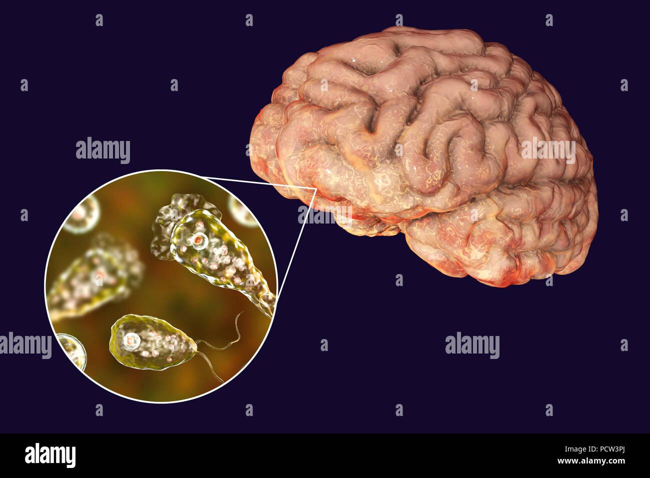 Gehirn - essen Amöbe Infektion. Computer Abbildung: Naegleria ...