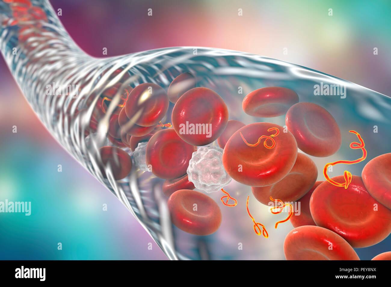 Ebola Virus Partikel Im Blut Computer Abbildung Dieses Virus Ist