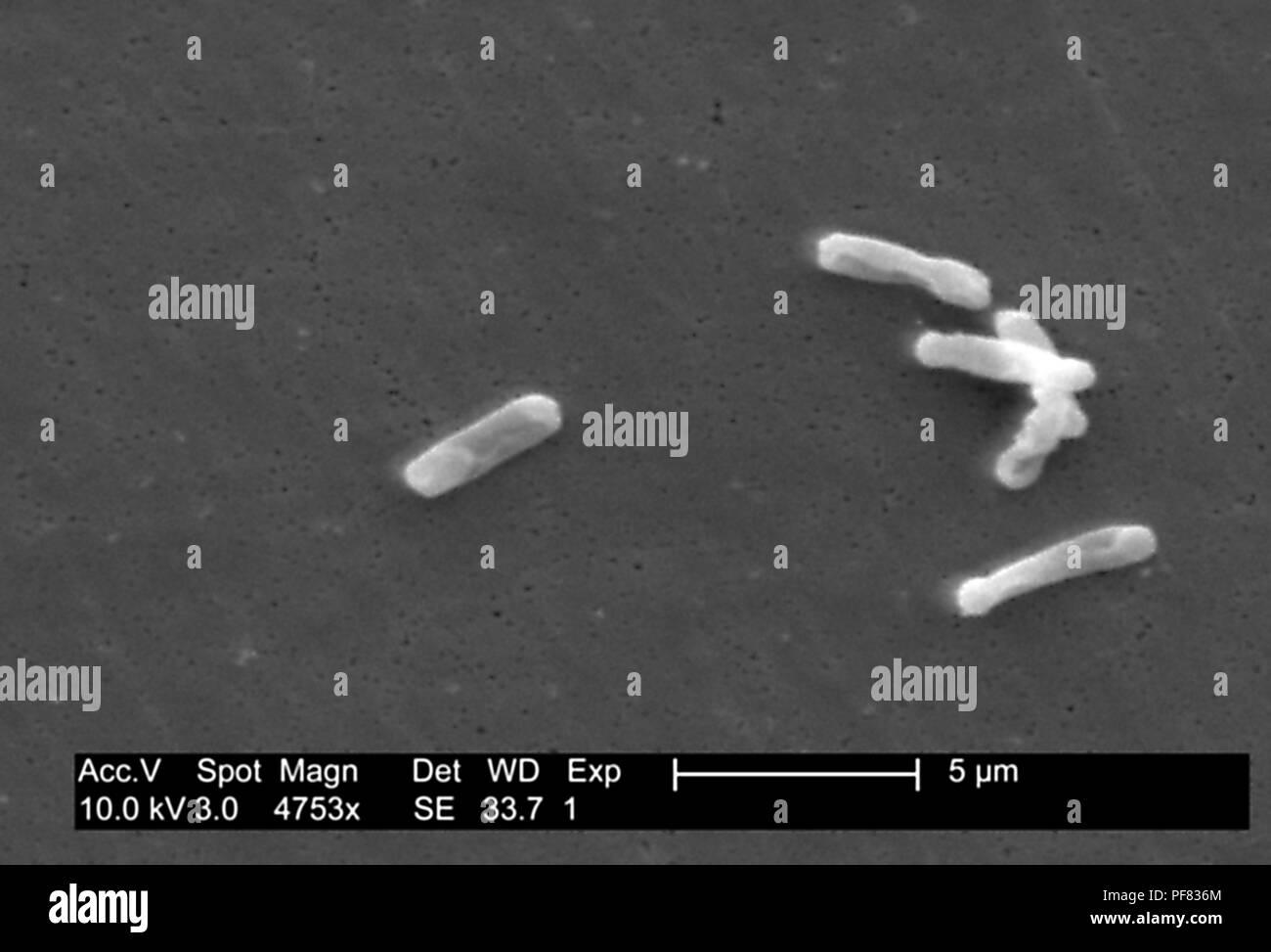 Gram Positive Bakterien Clostridium Difficile In Der Stuhlprobe