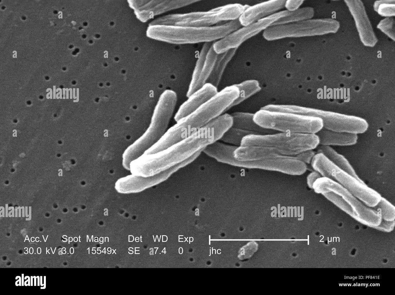 Ultrastrukturforschung Details von Gram-positiven Bakterien Mycobacterium Tuberkulose in der 15549 x offenbart vergrößerte Rasterelektronenmikroskopische (SEM) Bild, 2006. Mit freundlicher Seuchenkontrollzentren (CDC)/Ray Butler, MS, Janice Haney Carr. () Stockfoto