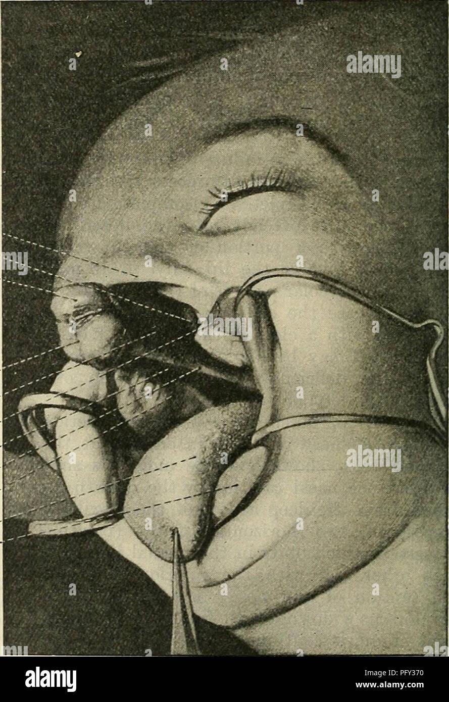 Cunninghams Lehrbuch der Anatomie. Anatomie. Wangentasche ...