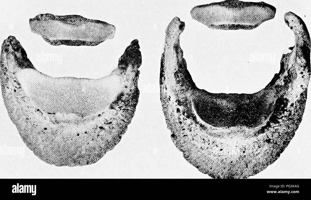 """. Das Pferd in der Gesundheit und in der Krankheit: ein text-Buch in Bezug auf die veterinärmedizinischen Wissenschaft für landwirtschaftliche Studenten. Pferde, Pferde. * I; * y"""". Abb. 60. - Normale und krankhafte digitale Knochen. Das fesselgelenk wurde unbeweglichen durch den Eingriff der Ring gerendert - Knochen. Die seitliche Knorpel haben in die Knochen verknöchert. Schiene ist eine Form der exostose, die auf dem vorderen Bein unterhalb des Knies. Es ergibt sich eine Versteifung zwischen der Kanone und sphnt Knochen. Es ist in aliout gefunden, 70 Prozent aller Erwachsenen Pferden; im 93. Bitte beachten Sie, dass diese Bilder aus gescannten Seite Bilder, die Digi wurden extrahiert werden Stockbild"""
