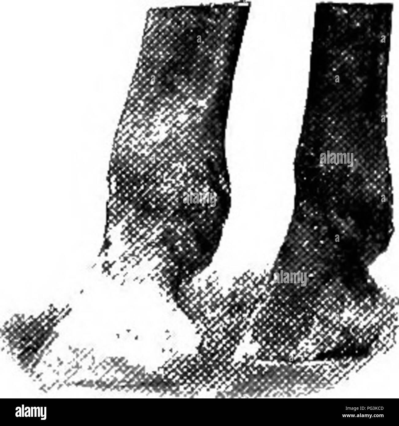 . Das Pferd in der Gesundheit und in der Krankheit: ein text-Buch in Bezug auf die veterinärmedizinischen Wissenschaft für landwirtschaftliche Studenten. Pferde, Pferde. Gemeinsame UNSOUNDNESSES und Laster 177, wenn es nicht den worlc des Pferdes es müssen nicht berücksichtigt werden, eine ernsthafte Verdorbenheit. Verbeugte sich sehnen Sehnen hinter die Kanone Knochen gelegen, sowohl in der Vorder- und Hinterbeine sind zu schweren Belastungen von gewalttätigen Bemühungen oder ruckartig unterzogen. Wenn die Verletzung ist mehr oder weniger ausgeprägte Schwellung und Schmerzen vorhanden ist. Die Schwellung geht in der Regel vom Knie bis in die Fessel, und gelegentlich sogar noch weiter. Es i Stockbild