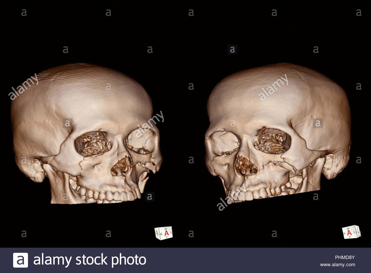 CT-Gesichtsbehandlung Knochen 3D der menschlichen Schädelbruch zu ...