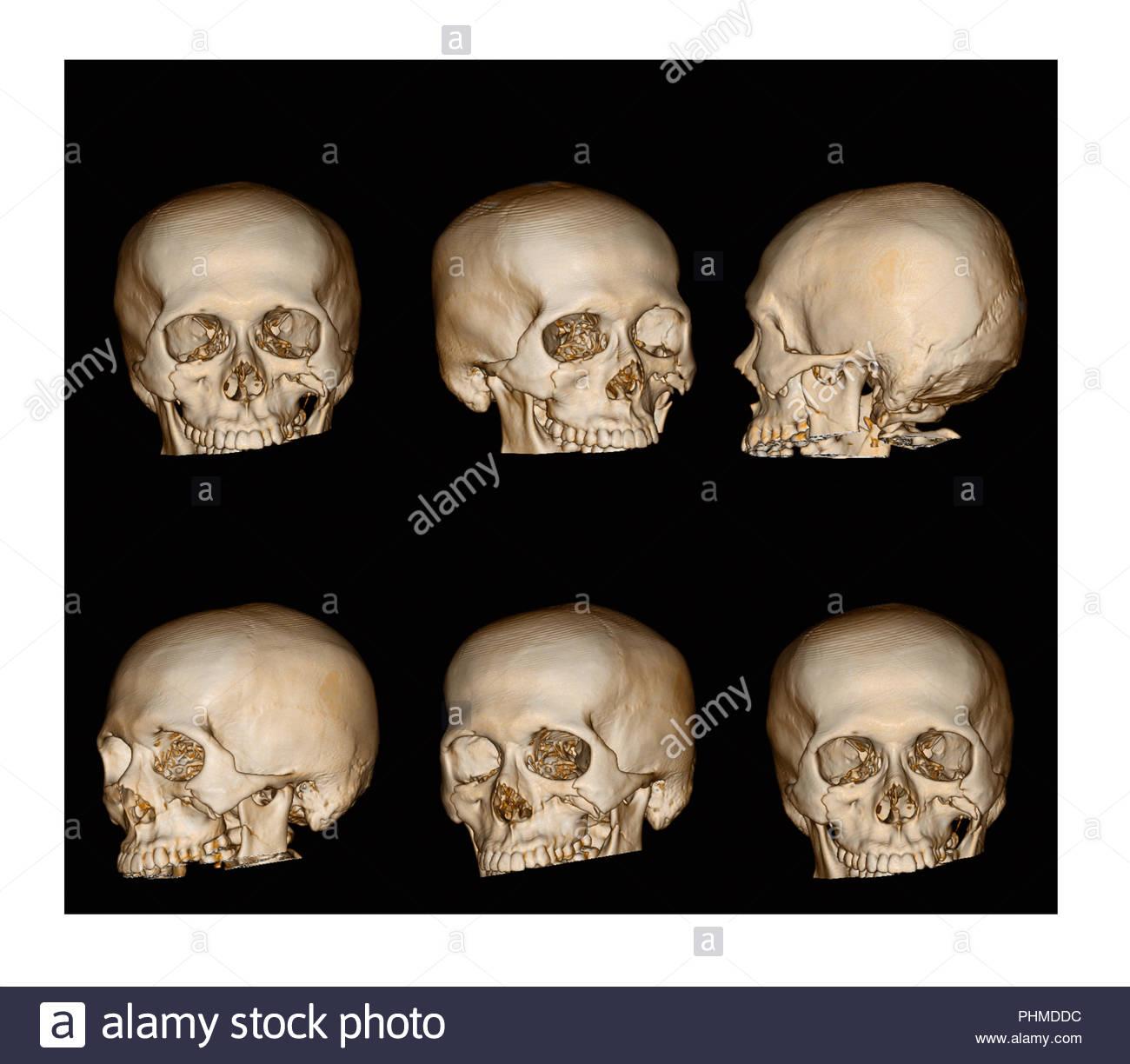 3D-Schädel Sammlung Bruch auf Gesicht. CT-Gesichtsbehandlung Knochen ...