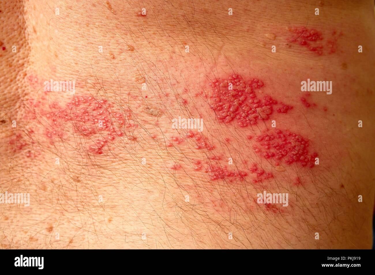 Herpes über 50
