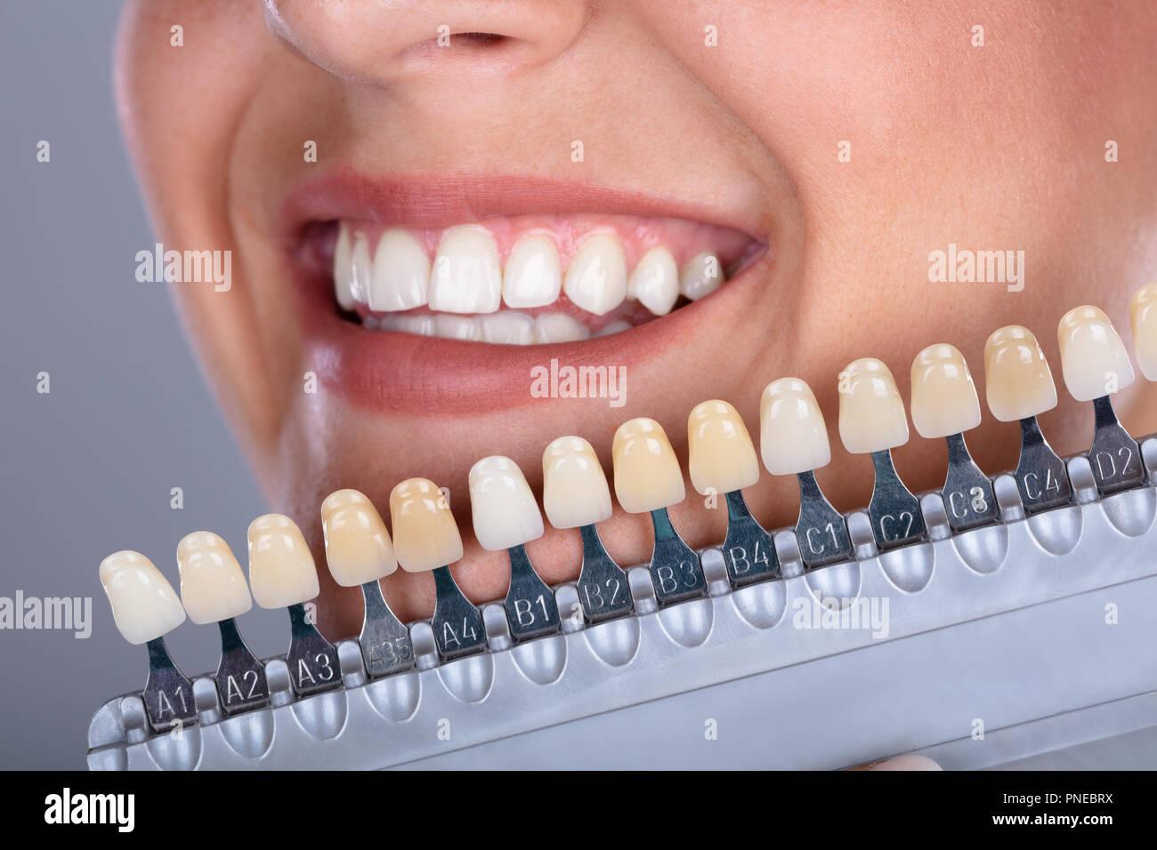 B1 zahnfarbe Zahnfarben