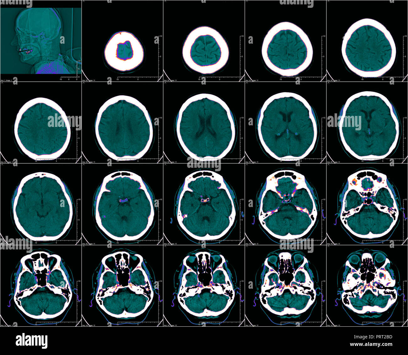 Kopf in der Computertomographie, CT-Bild Stockbild