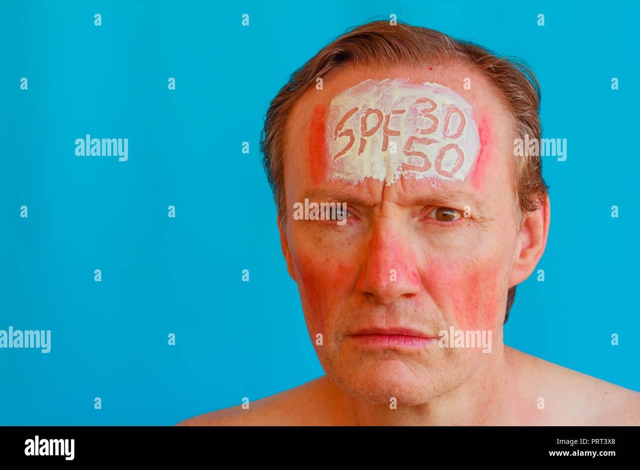 Ein Mann hat das solar Erythem, weil er nicht 30 oder 50 hoher Sonnenschutz, bevor Sie sich der Sonne auszusetzen. Stockbild