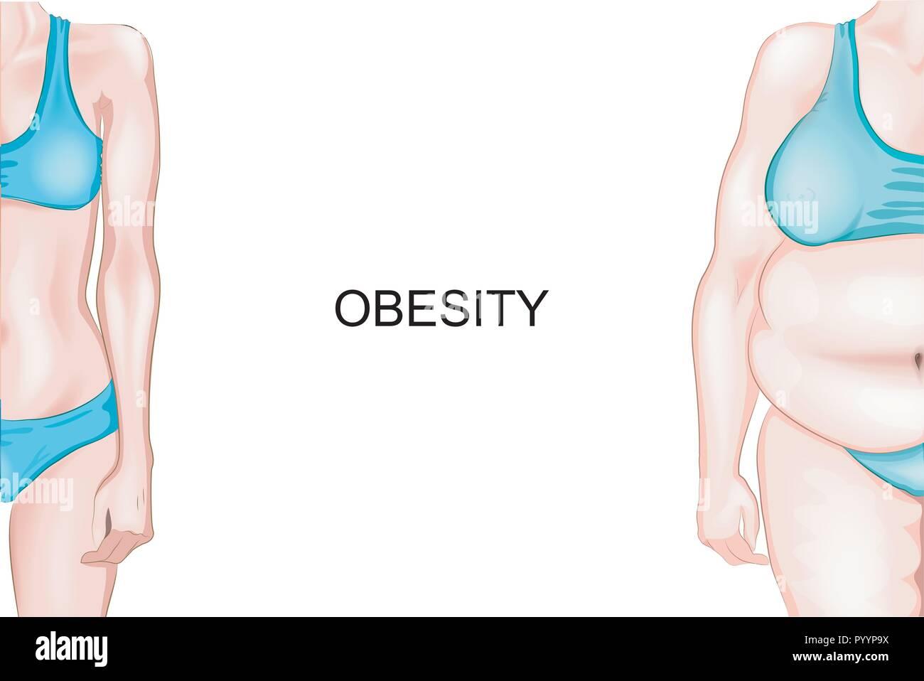 Ist ein mann in ordnung mit einem übergewichtigen mädchen